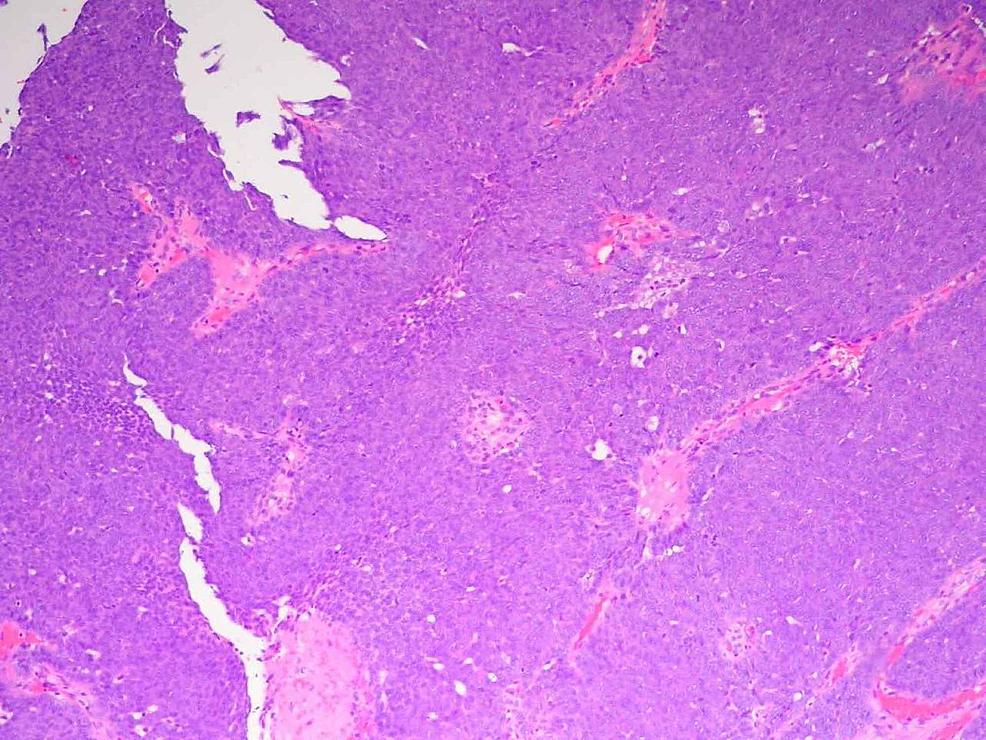 Histopathology-of-Tumor-Specimen-Mag.-40x