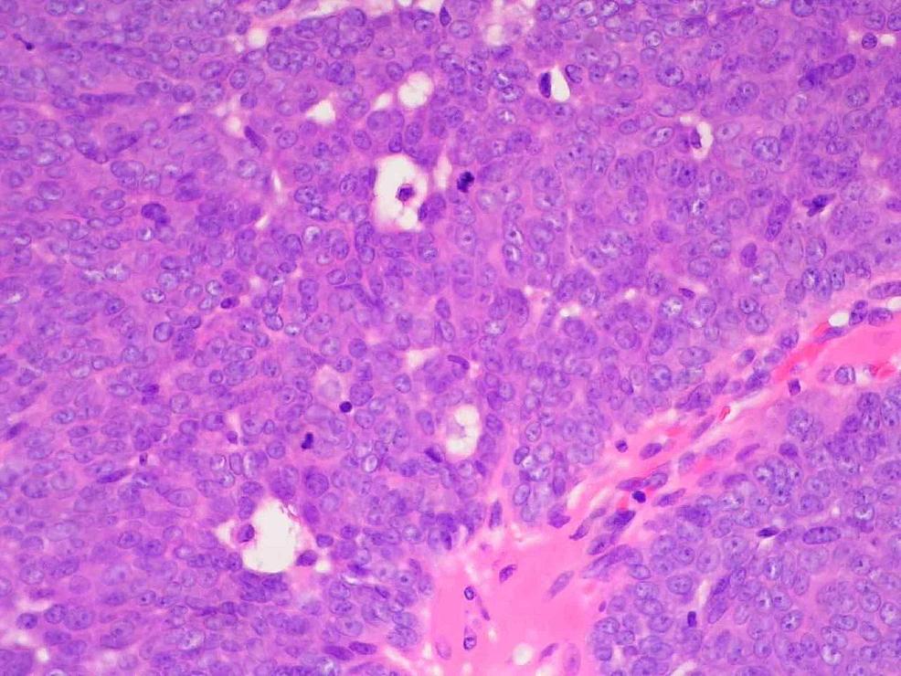 Histopathology-of-Tumor-Specimen-Mag.-60x