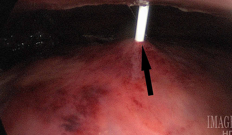 Direct-visualization-of-the-percutaneous-endoscopic-gastrostomy-needle-entering-passing-through-the-skin-and-into-the-stomach.-The-arrow-indicates-successfully-placement-of-the-gastrostomy.