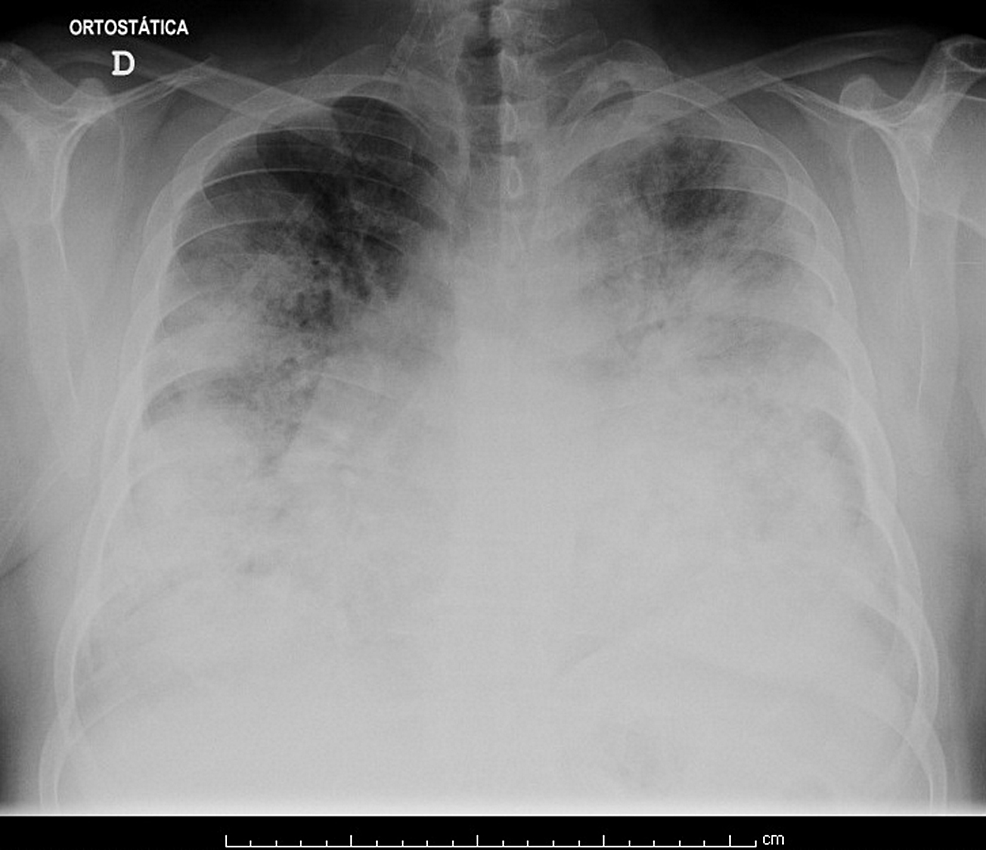 Chest-radiography-on-admission-to-the-Emergency-Department.