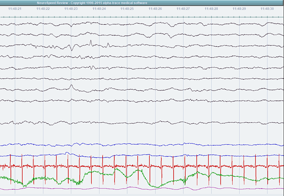 Electroencephalogram-showing-sharp-waves-and-spikes