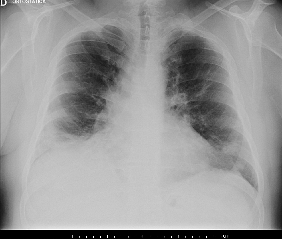 Chest-radiography-on-discharge.
