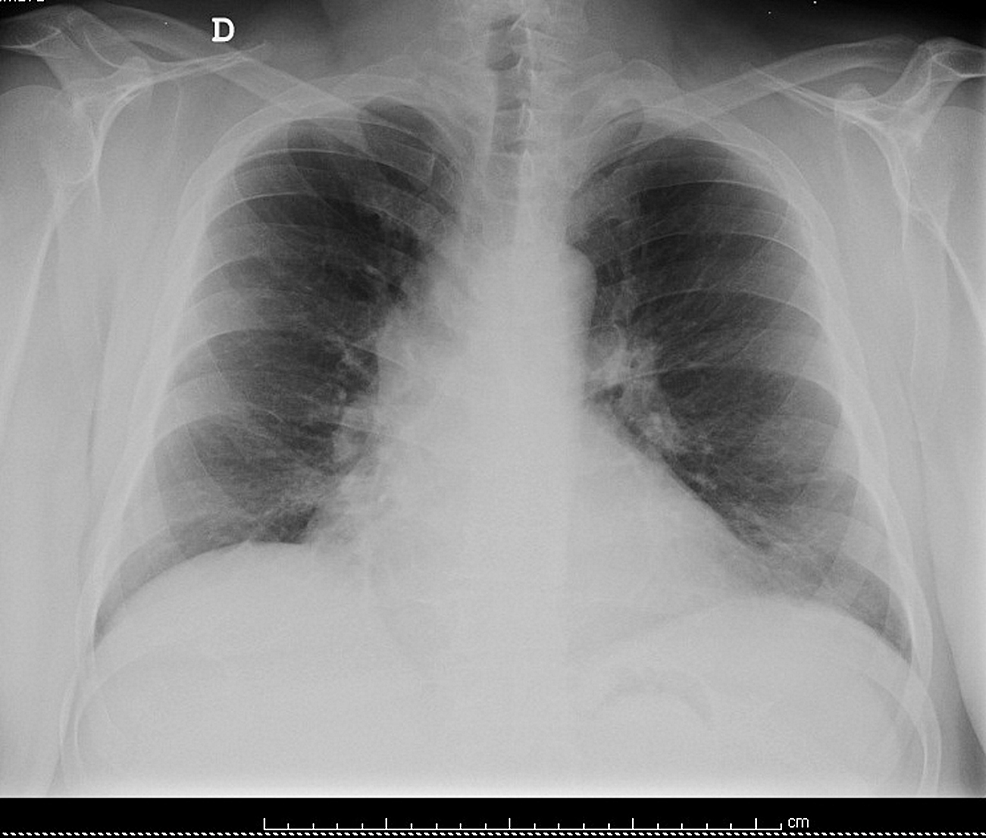 Chest-radiography-during-follow-up.