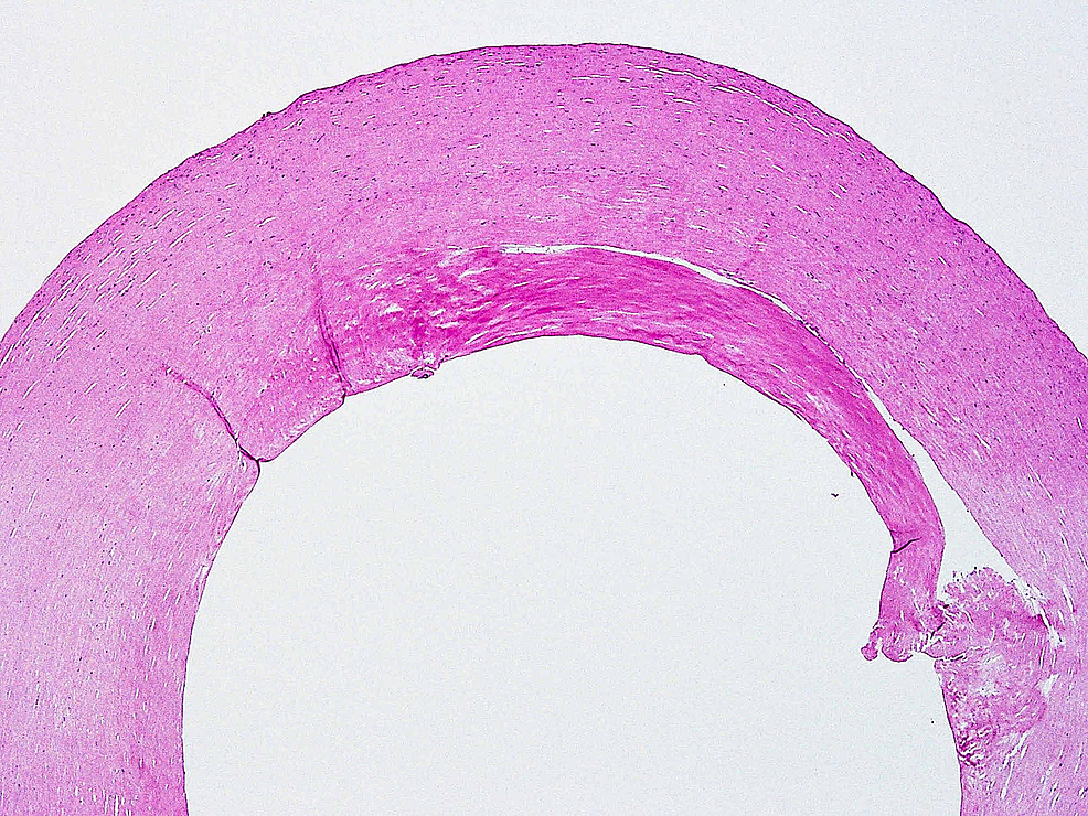 Haematoxylin-and-eosin-stain-of-fibrous-capsule-showing-mostly-acellular-hyalinised-fibrous-tissue