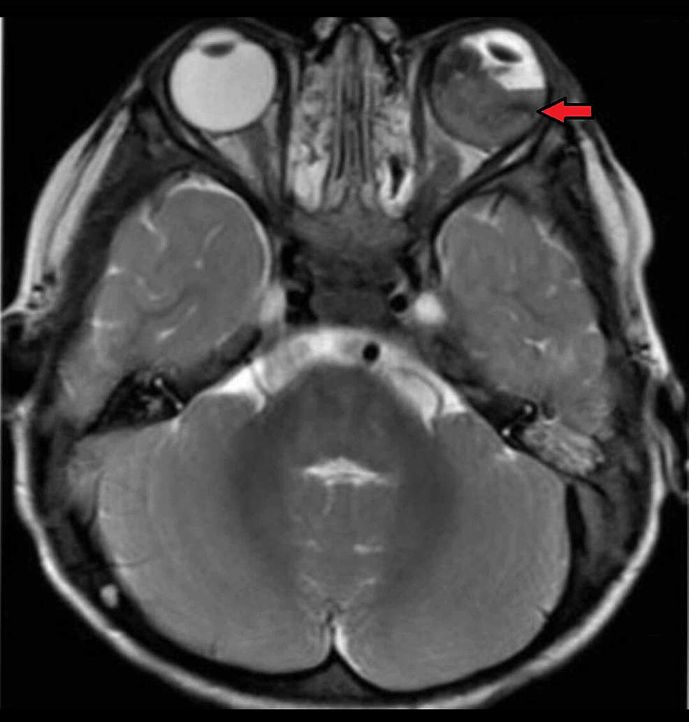 Axial-T2-weighted-MRI-of-the-brain-and-orbit-showing-retinoblastoma-in-left-eye-along-with-retinal-detachment-(red-arrow)