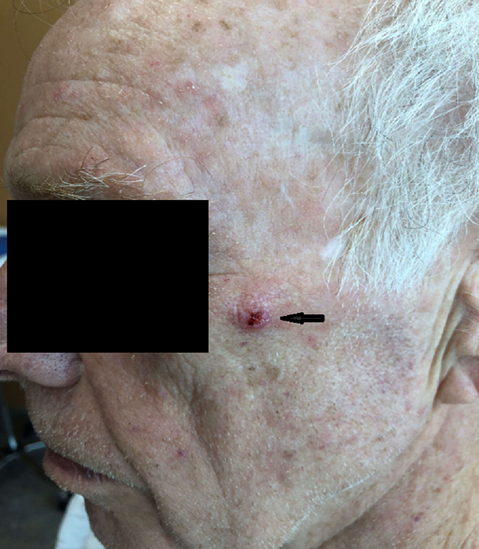 Photograph-showing-sebaceous-carcinoma-nodule-on-the-left-cheek-of-the-patient.