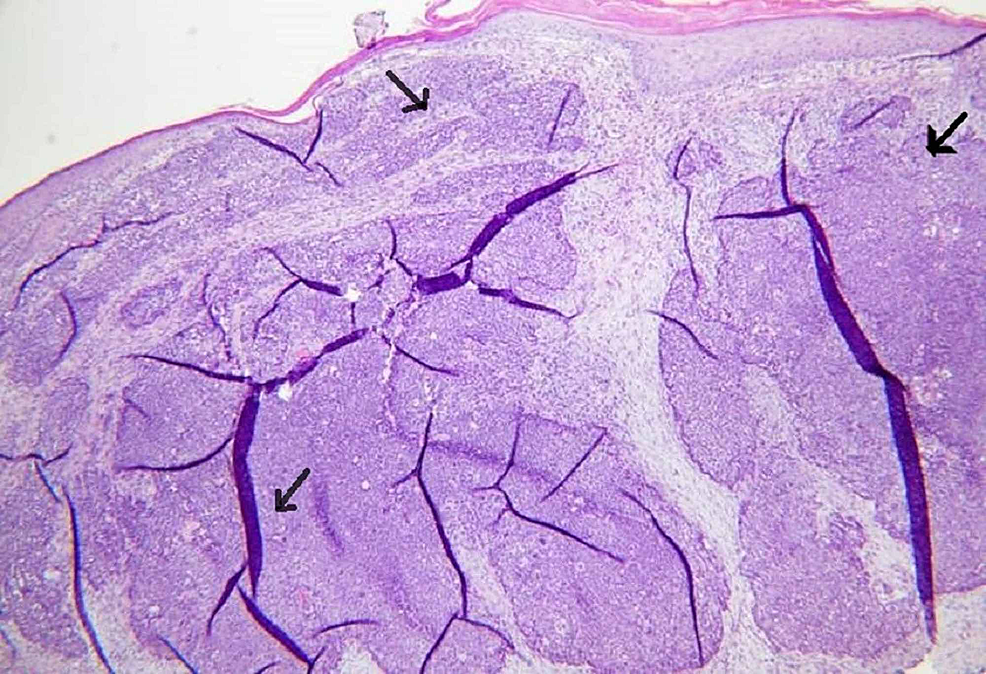 Histological-sections-reveal-skin-with-unremarkable-epidermis-and-a-dermal-based-proliferation-of-sebaceous-lobules.