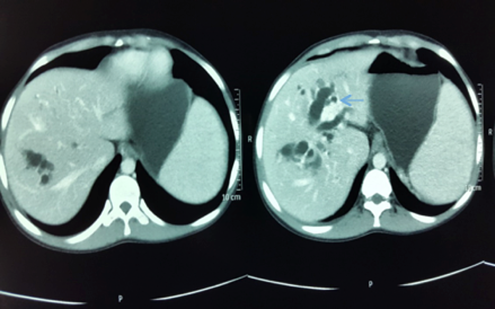 Intra-hepatic-biliary-duct-was-grossly-dilated-and-cystic-(blue-arrow)-as-seen-in-the-computed-tomography-of-the-abdomen