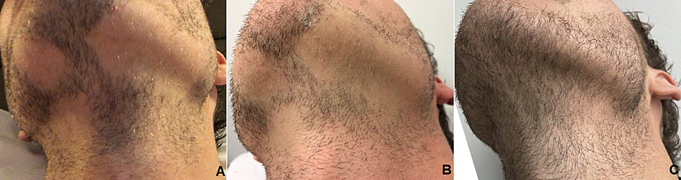 Initial-status-(A),-minimal-regrowth-six-weeks-after-the-second-injection-(B),-robust-regrowth-at-one-year-follow-up-(C).