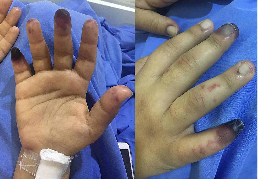 Dry-gangrene-located-on-the-tips-of-the-third-and-fifth-digits-of-the-right-hand-of-a-20-year-old-female.