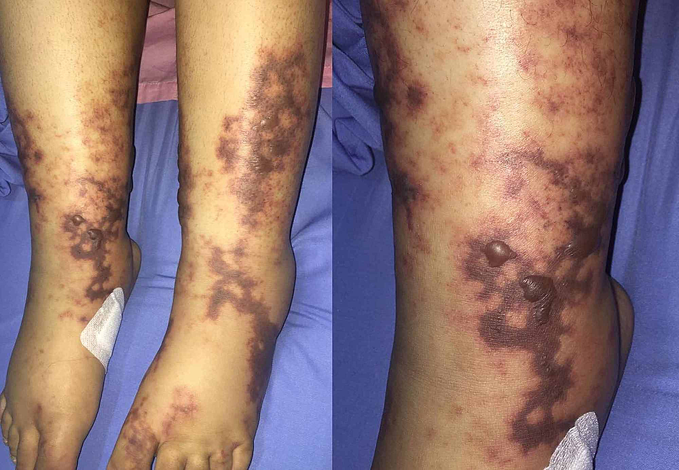 Livedo-reticularis-and-a-petechial-rash-over-the-feet-and-distal-legs-of-a-20-year-old-female.