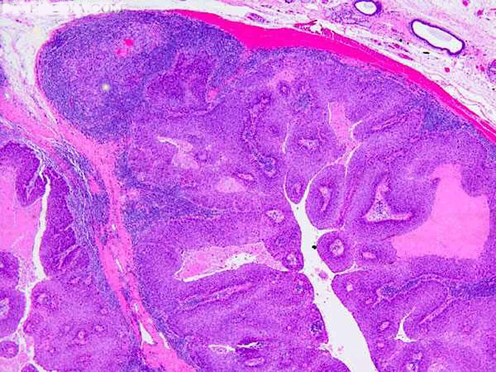Light-photomicrograph-of-histopathologic-section-from-the-patient-with-squamous-cell-carcinoma-(hematoxylin-and-eosin-stain,-10x-magnification)