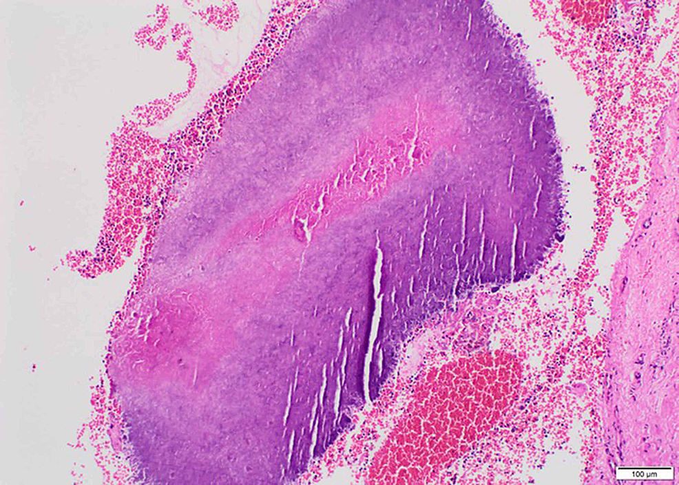 Light-photomicrograph-of-histopathologic-section-from-the-patient-with-tonsillar-actinomycosis-(hematoxylin-and-eosin-stain,-x10-magnification)