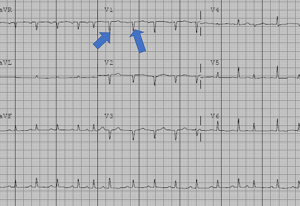 Electrocardiogram-revealing-sinus-tachycardia,-low-voltage-QRS-complexes,-and-a-prolonged-QT-interval
