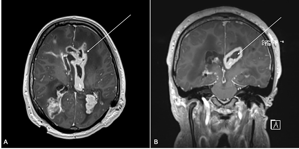 MRI-T1-with-contrast-