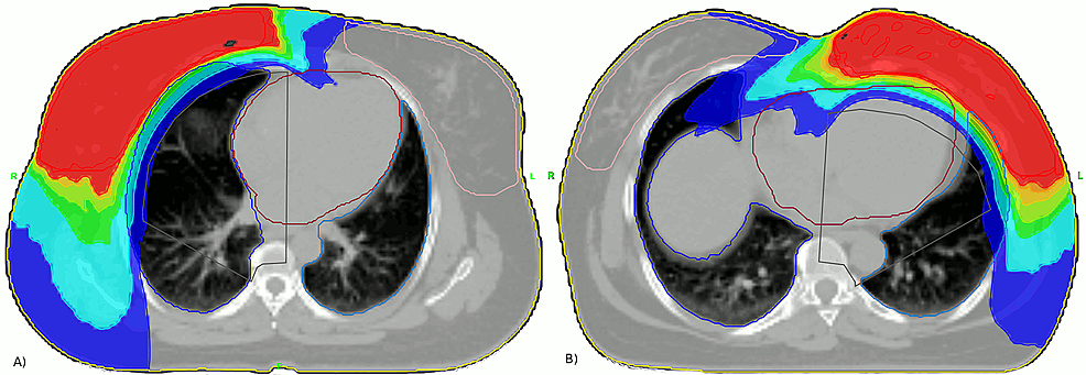 Typical-dose-distributions-obtained-with-the-teardrop-technique.