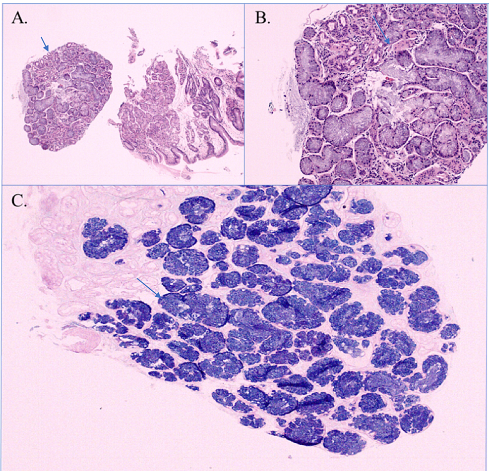 Biopsy-findings