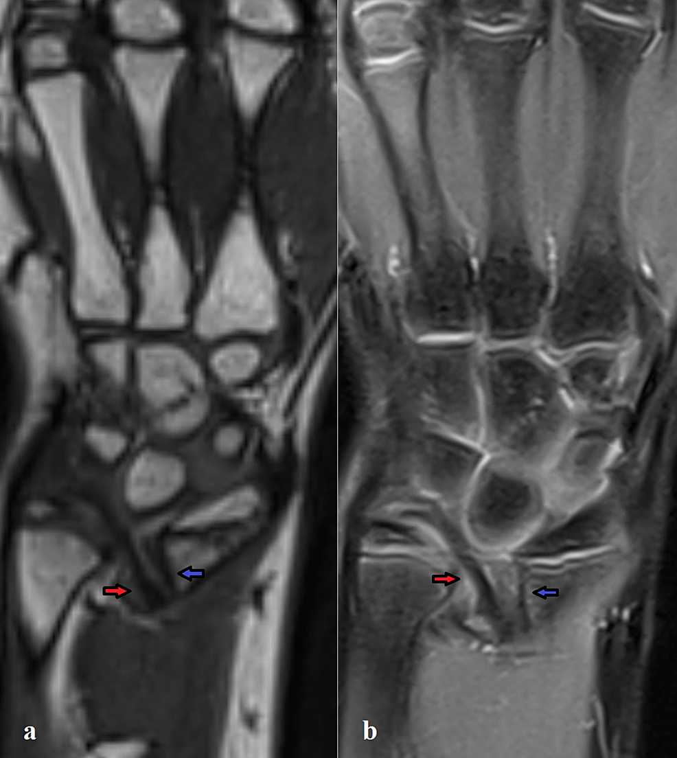 MRI-aspect-of-the-VL-and-RTL.