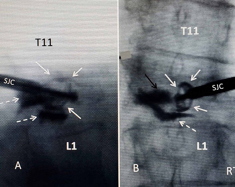 Intraoperative-film-of-expanded-4.2-mm-SpineJack-implant-just-off-center-from-the-right-side-of-vertebral-body-before-bone-cement-is-injected
