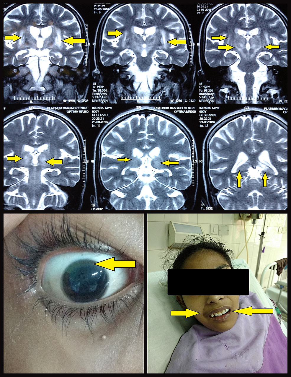 Figure-Showing-Hyperintensity-of-Basal-Ganglia-and-Surrounding-Brain-Gray-Matter-on-MRI,-Kayser-Fleischer-Rings,-and-Mask-Like-Facies