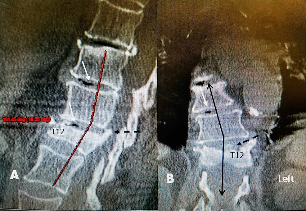 CT-scan-before-initial-kyphoplasty