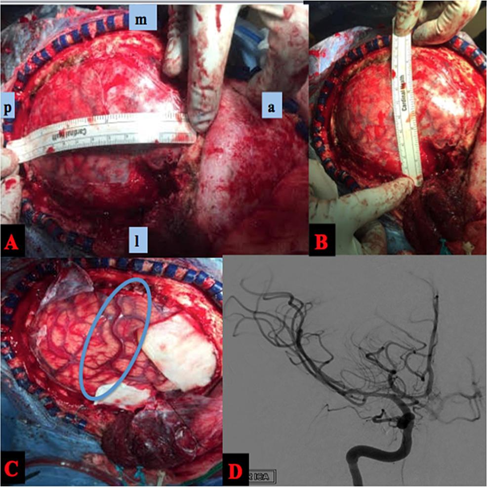 Intraoperative-and-Postoperative-Angiogram