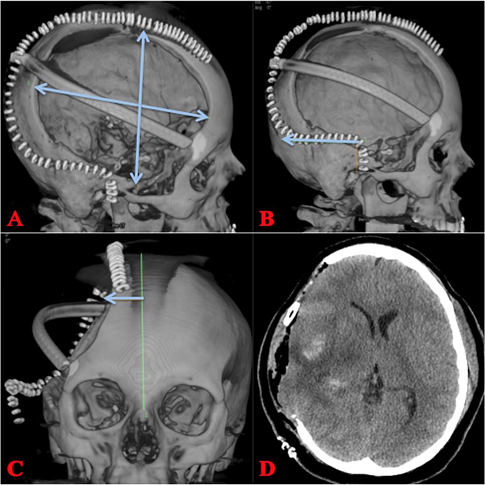 Postoperative-Hemicraniectomy