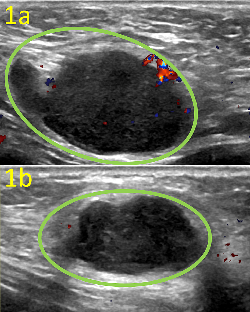 Targeted-Ultrasound-of-the-Bilateral-Low-Axilla