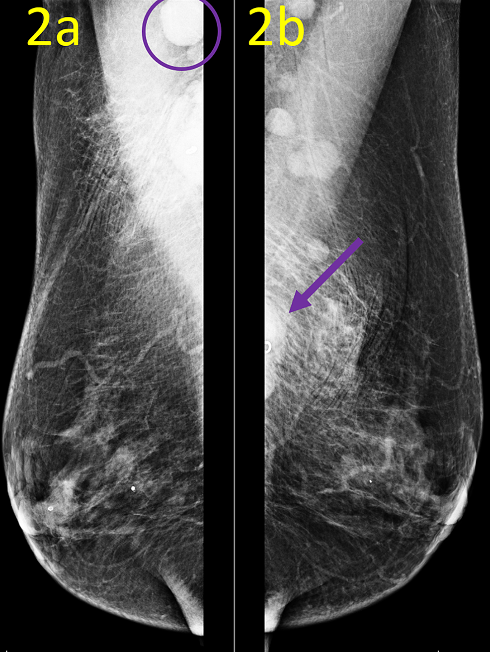Postbiopsy-Mammogram-Mediolateral-Oblique-(MLO)-Views