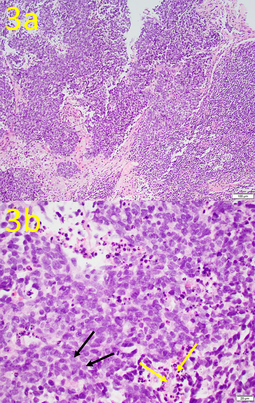 Hematoxylin-and-Eosin-(H&E)-Stain-of-Biopsy-Tissue