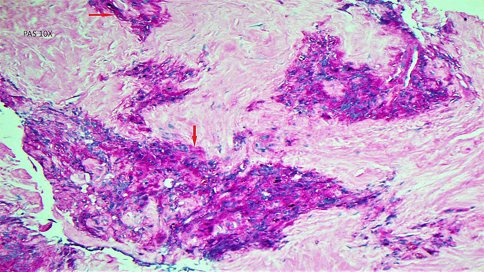Histopathology-slide-showing-PAS-stain-positive-cells