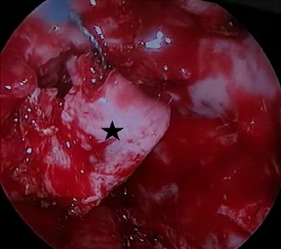 Intraoperative-image-demonstrating-the-insertion-of-vascularized-nasoseptal-flap-(black-star)-onlay.