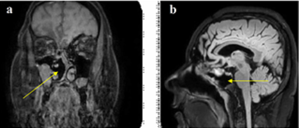 MRI-brain-scan-[coronal-(a)-and-sagittal-(b)-view]-one-year-postoperatively-demonstrating-no-recurrence-of-meningoencephalocele-into-the-right-nasal-cavity-(yellow-arrow)-and-no-evidence-of-CSF.