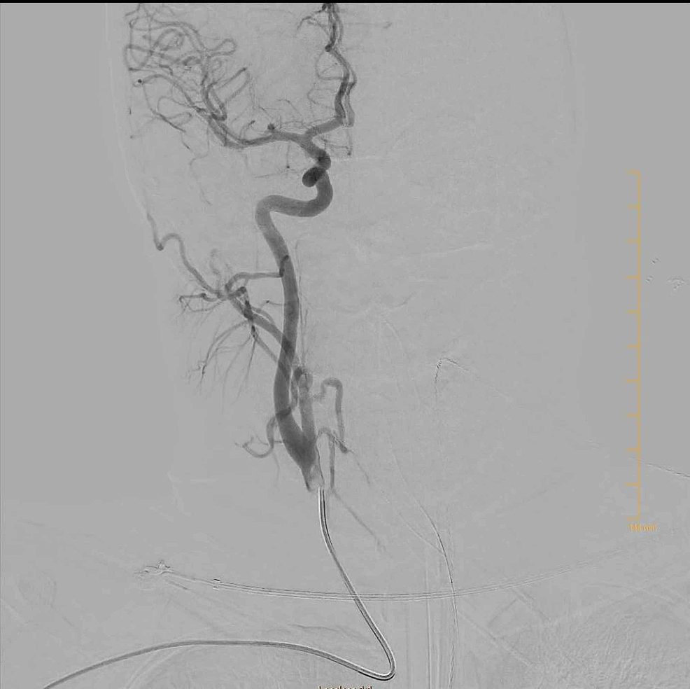 Angiogram-of-right-carotid-artery
