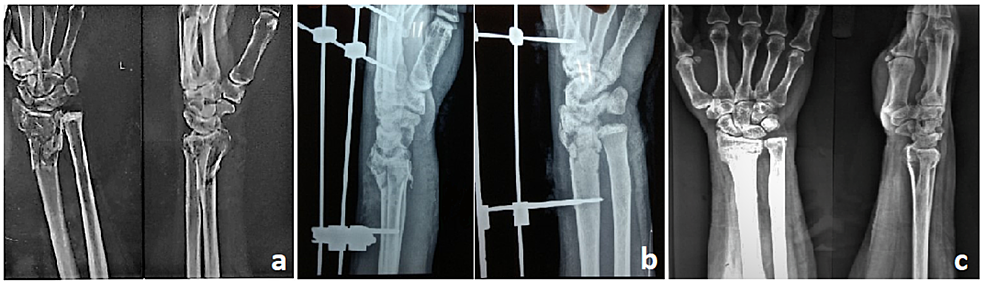 A:-Preoperative-radiograph-showing-intraarticular-distal-radius-fracture-(AO-type-C3);-B:-Postoperative-radiograph-with-external-fixator-in-situ;-C:-Six-month-follow-up-radiograph-showing-radiological-union