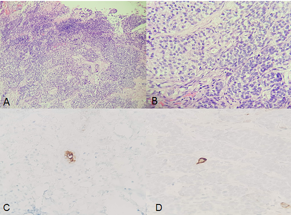 Porocarcinoma-in-the-reported-case