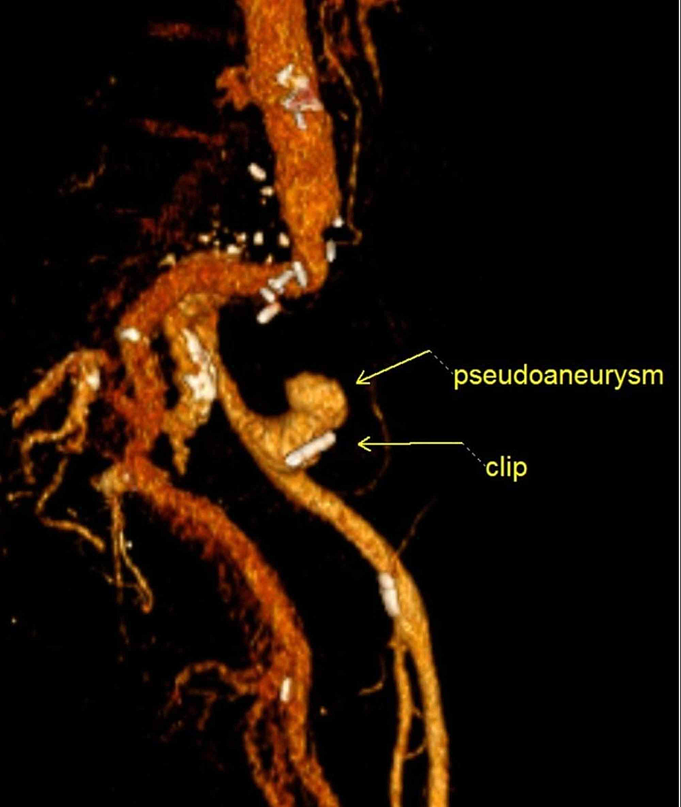 3D-rendered-computed-tomography-(CT)-image-demonstrates-the-endoscopically-placed-clip-adjacent-to-the-pseudoaneurysm;-prior-clips-from-previous-aortoiliac-surgery-can-also-be-seen