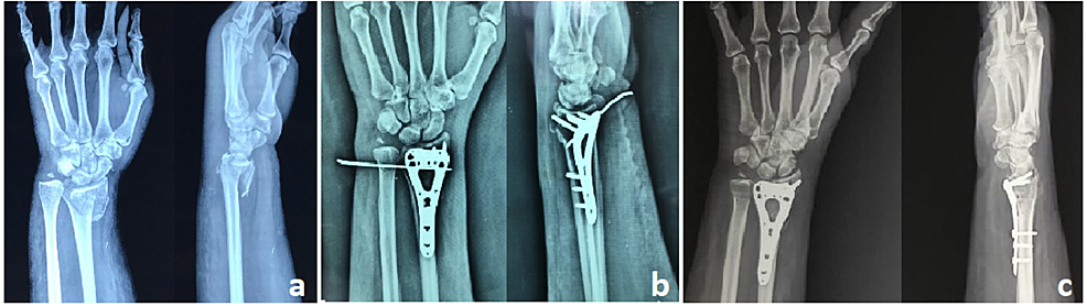 A:-Preoperative-radiograph-showing-intraarticular-distal-radius-and-ulnar-styloid-fracture;-B:-Postoperative-radiograph-with-the-volar-locking-plate-and-DRUJ--K-wire-in-situ;-C:-Six-month-follow-up-radiograph-showing-radiological-union