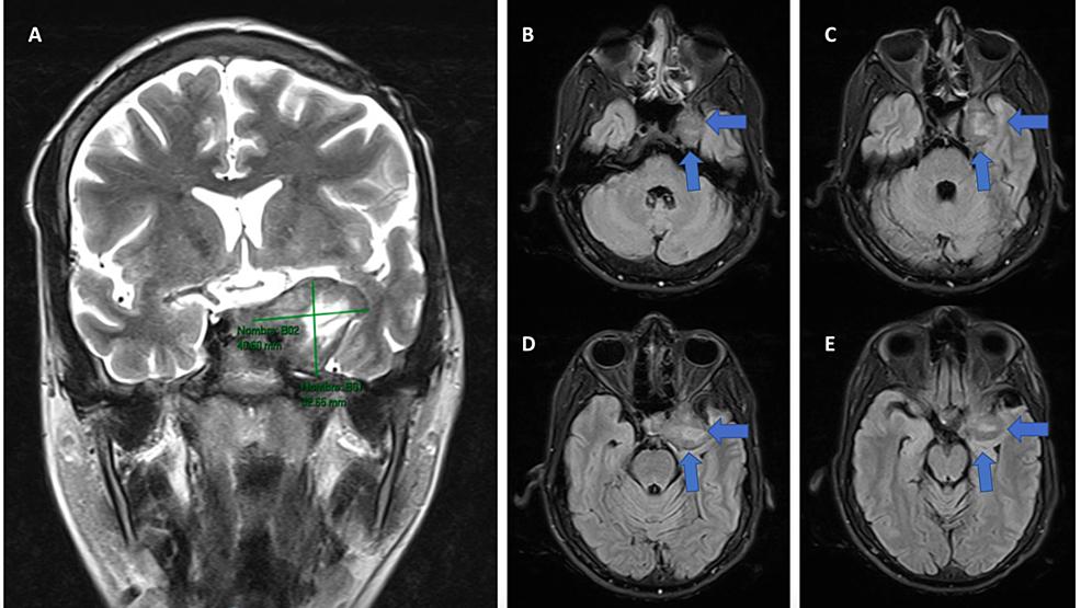 Cerebral-MRI