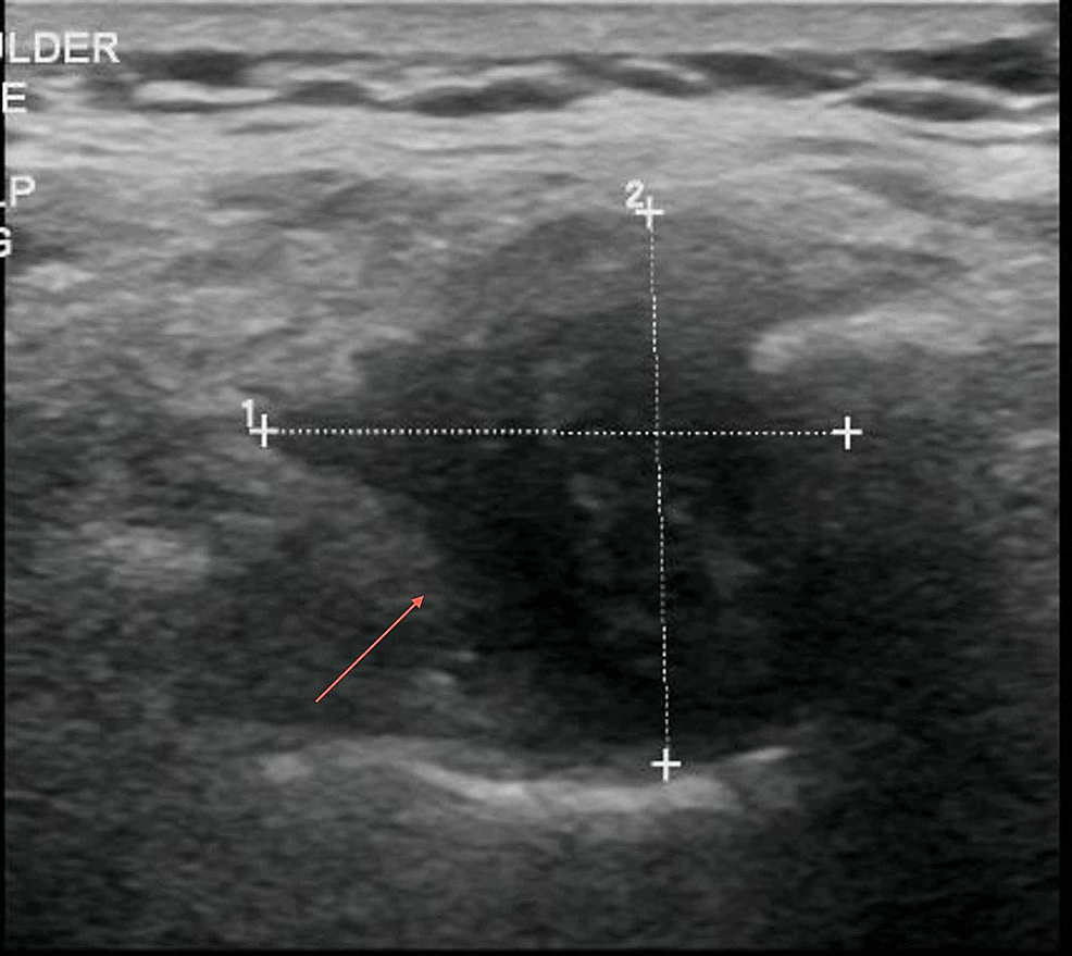 Ultrasound-of-right-periscapular-region-showing-a-complex-hypo-echoic-mass