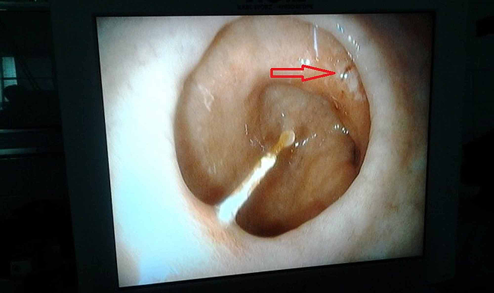 Image-showing-an-ulcer-in-the-first-part-of-the-duodenum-caused-by-the-fishbone.