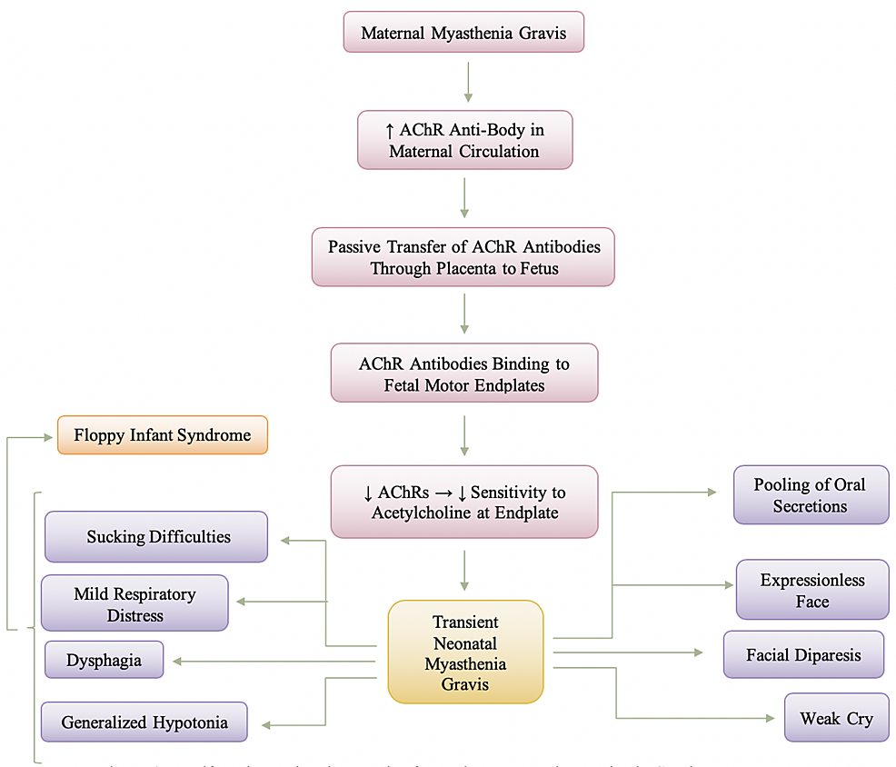 Manifestation-and-Pathogenesis-of-Transient-Neonatal-Myasthenia-Gravis