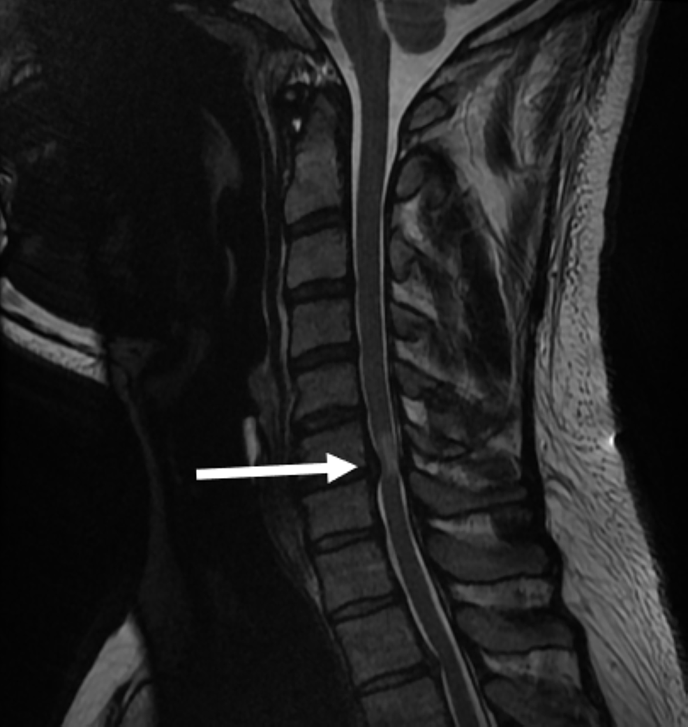 T2-weighted-MRI-showing-spinal-cord-compression-and-focal-cord-oedema-at-the-C6/7-level