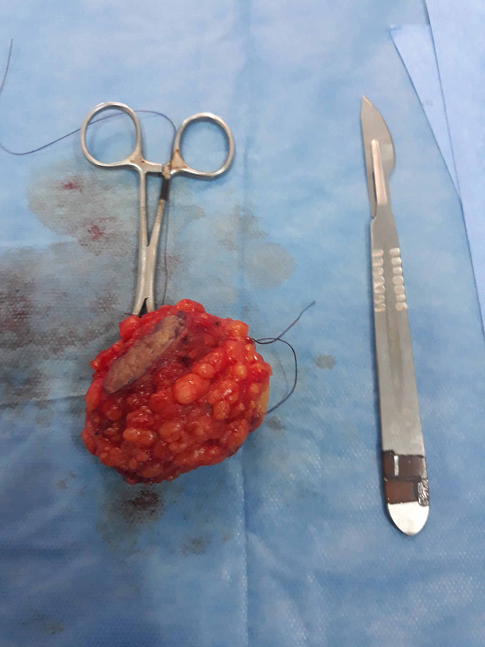 Image-showing-the-resected-mass
