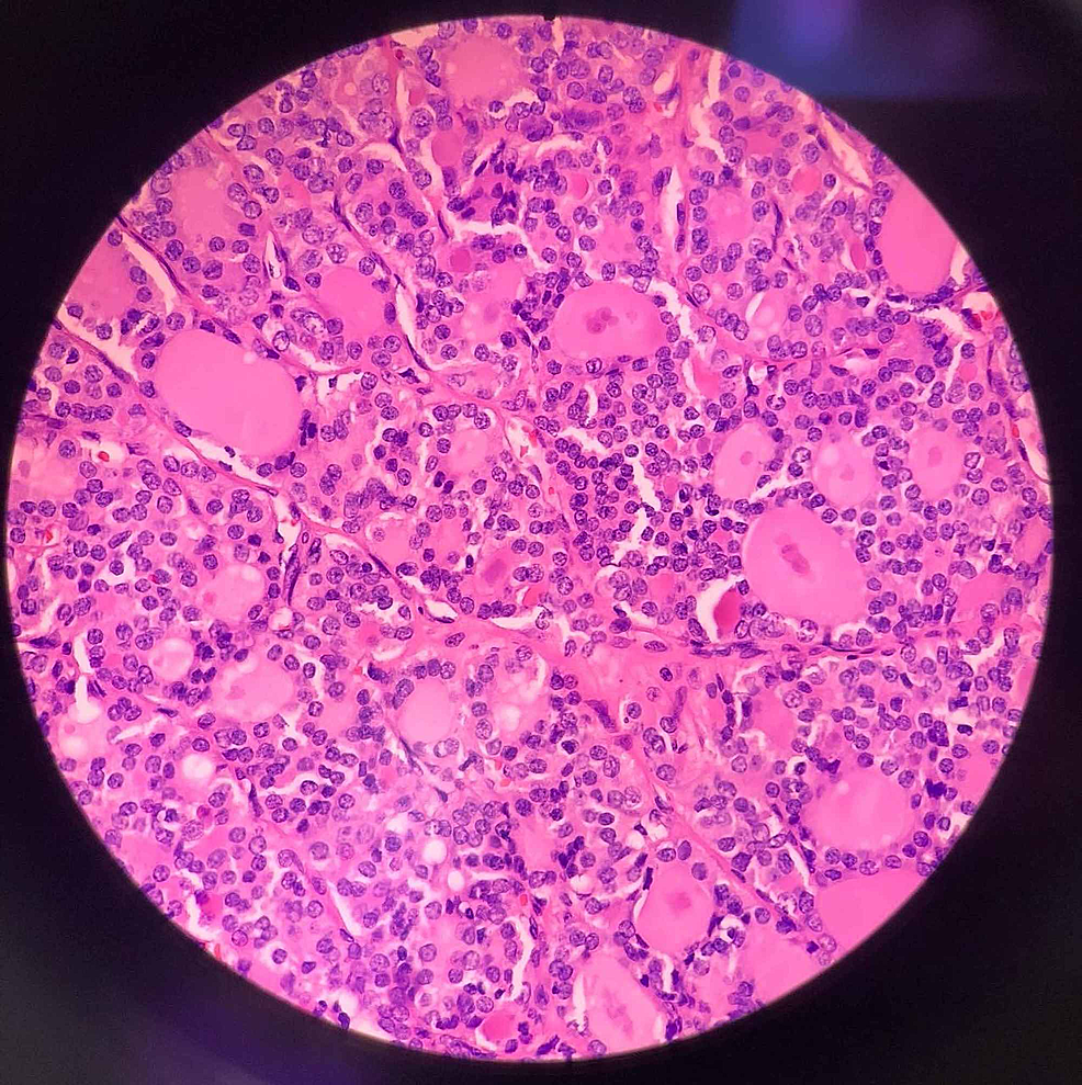Microscopic-image-showing-papillary-microcarcinoma,-follicular-variant.