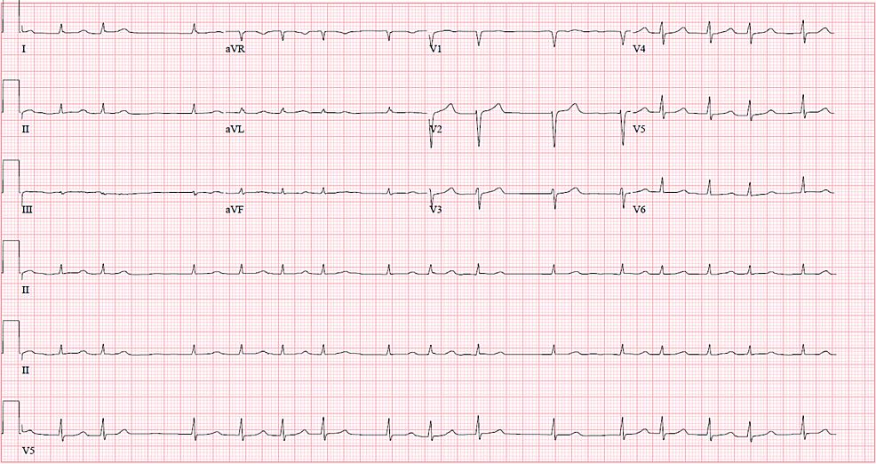EKG-on-admission-showing-atrial-fibrillation.