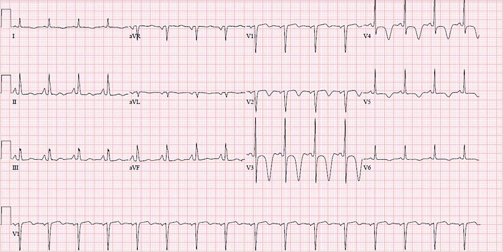 -EKG-showing-T-wave-inversions-in-V2-V6-with-deep-symmetric-inverted-T-waves-in-leads-V3-and-V4