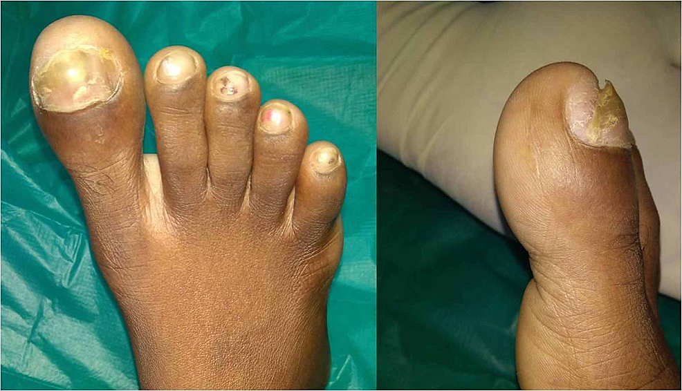 Clinical-picture-of-the-right-great-toe-swelling