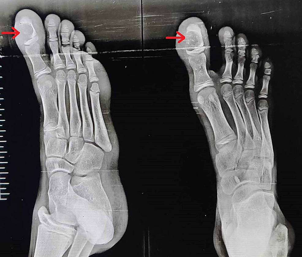 Anteroposterior-and-lateral-view-X-rays-of-the-right-foot