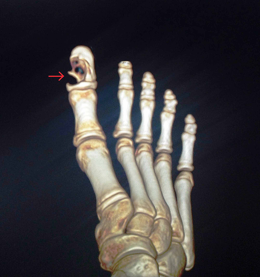 3D-reconstructed-computed-tomography-image-of-the-right-foot